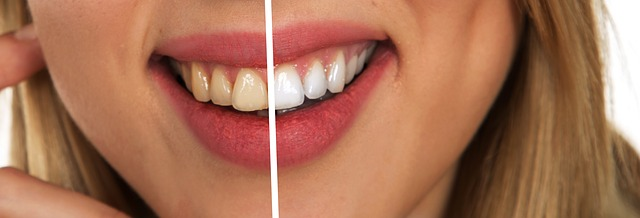 Zahnbelag sieht nicht schön aus, lässt sich aber mit Hausmitteln entfernen.